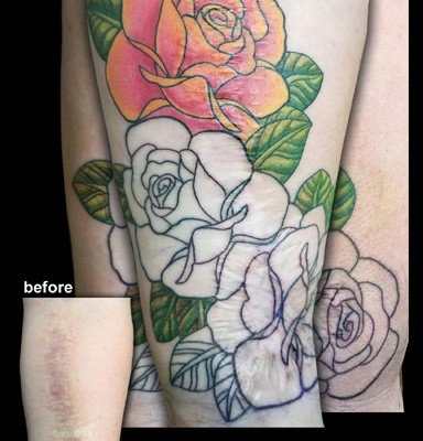 scar cover-up tattoo in progress by Tanya Magdalena
